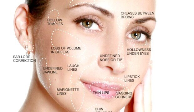 5 Must Know Points On Dermal Fillers