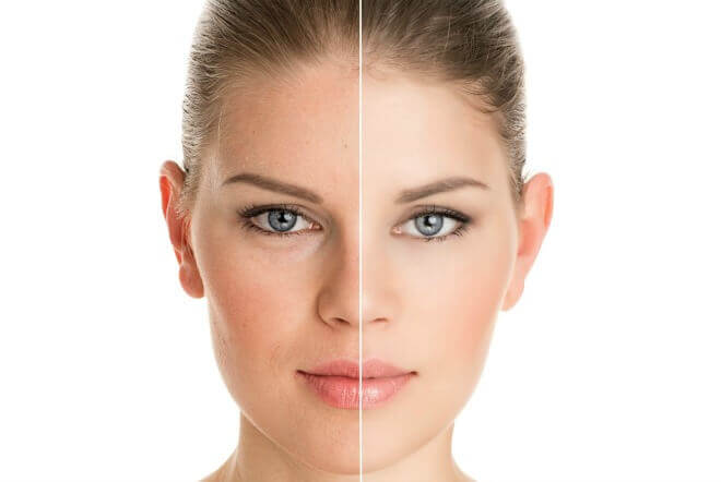 Chemical peels vs. microdermabrasion what is the difference?
