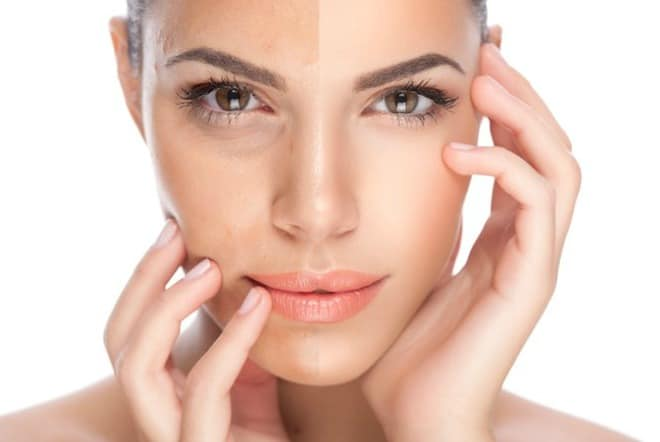Skin rejuvenation here are the top 5 treatments to look out for