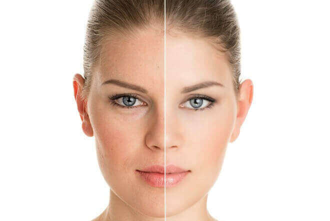 Chemical Peels Vs Microdermabrasion What Is The Difference
