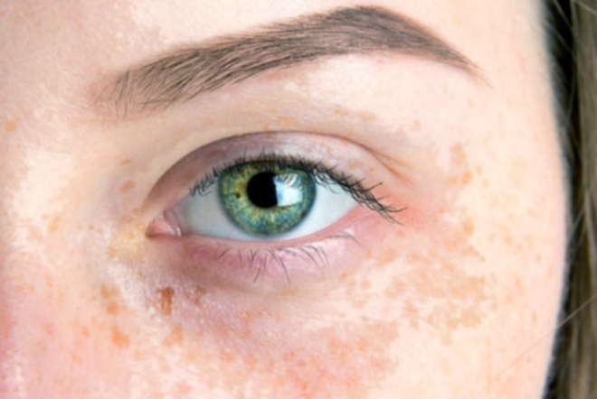 Discolouration Everyday Ways to Lighten Pigmentation