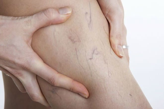 Spider Veins: Say So Long To Those Unsightly Streaks