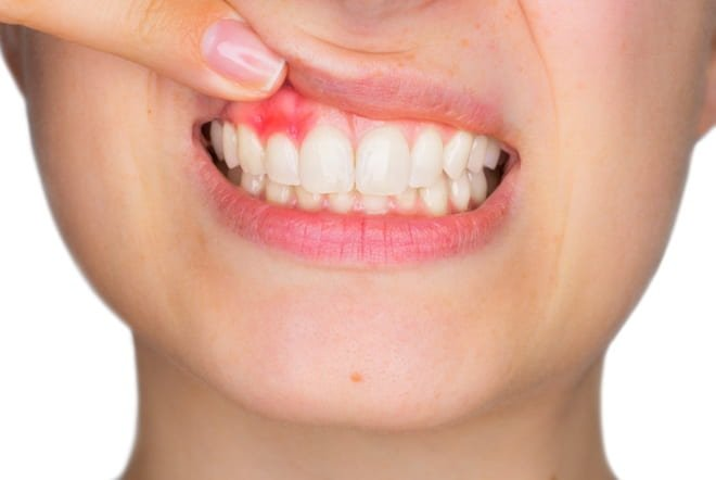 Gingivitis Effective nutraceutical solutions to help beat it