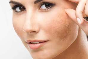 Hormonal pigmentation and how to treat and remove it effectively