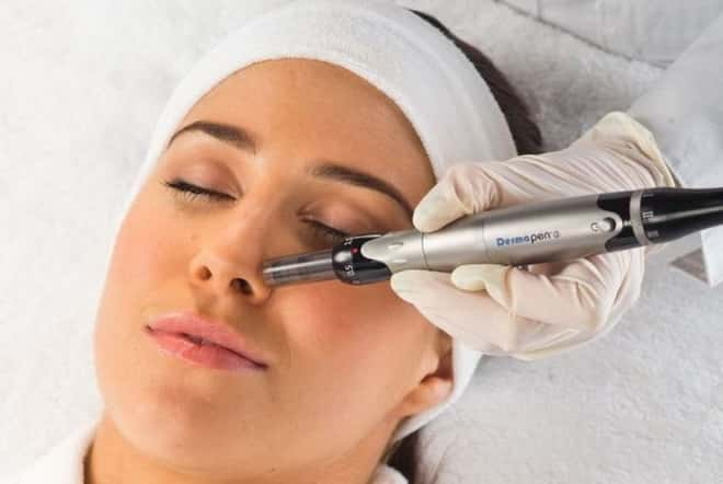 Mesotherapy VS Dermapen skin needling Whats the difference