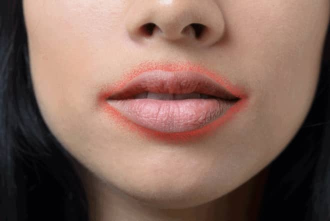 Perioral-Dermatitis-It-Is-Often-Confused-With-Acne-and-here-is-why