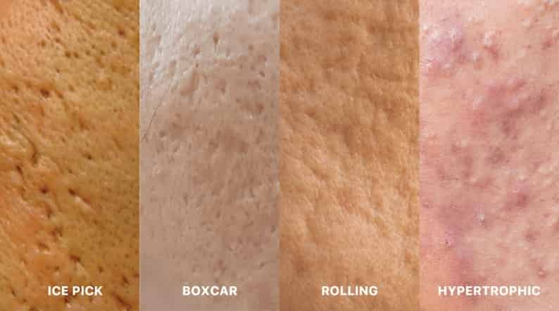 Acne scars: The different types of scars and how to treat them